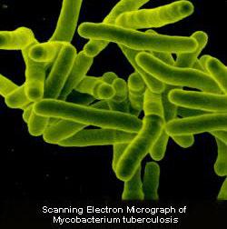Awas Bahaya Laten TBC! Kenali Cara Pencegahan, Gejala Serta Penularannya